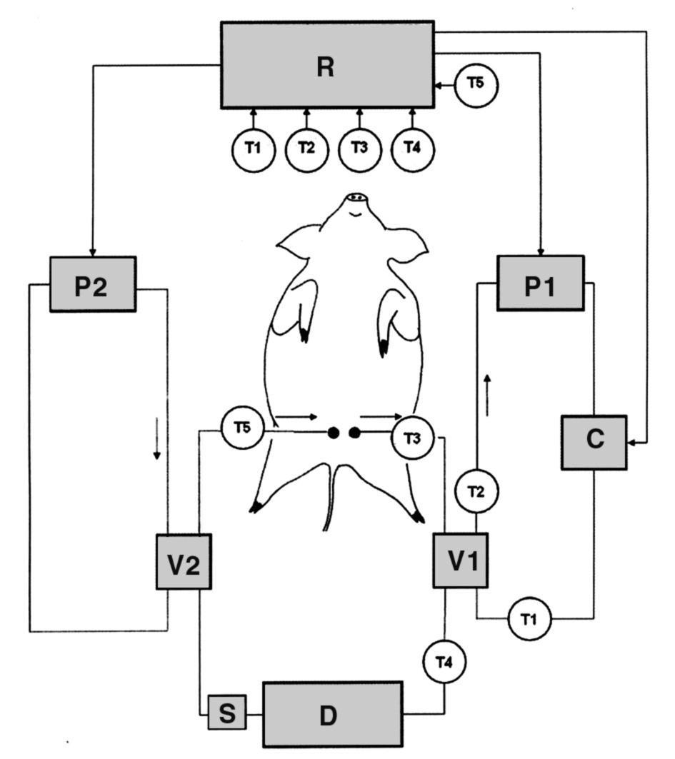 Technické schéma chladicího zařízení D = přístroj CRRT (v CVVH módu); V1 = chladicí jednotka; V2 = ohřívací jednotka; P1 = jednotka pro chlazení chladicího média; P2 = jednotka pro ohřev ohřívacího média; C = pumpa; T1–T5 = teplotní snímače; R = počítačová řídicí jednotka; S = místo odběru vzorků pro analýzy TEG a TAT<sub>circ</sub>