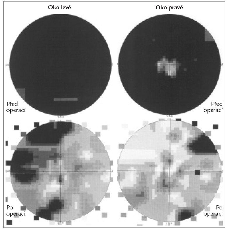 Obr. 2b. Nález na perimetru u téže pacientky před a po úspěšné transsfenoidální operaci objemného adenomu hypofýzy (černě absolutní skotomy).