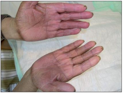 Klinický nález při přijetí pacienta