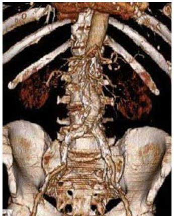 3D CT rekonstrukce obrazu aneuryzmatu břišní aorty po implantaci břišního stentgraftu.