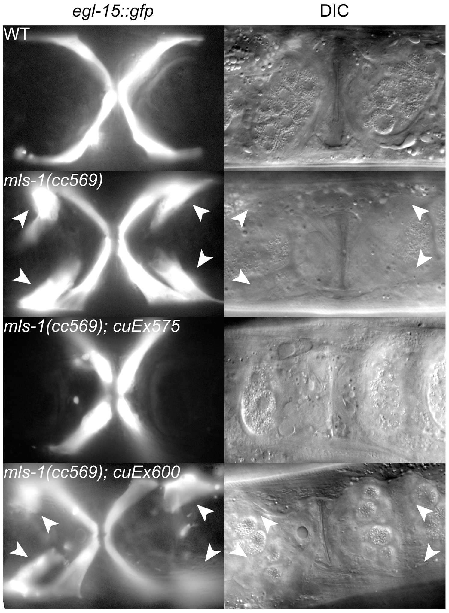 MLS-1 uterine muscle specification activity depends on its eh1 motif.