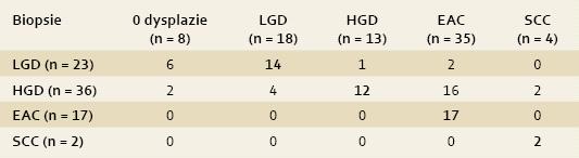 Histologie z ER. Shoda, či neshoda v diagnóze mezi biopsiemi (sloupec) a ER (řádek) – tučné číslice značí shodu mezi biopsiemi a ER (event. ESD).  Tab. 1. Histology of ER. An agreement and disagreement in diagnosis between biopsies (column) and ER (row) – an agreement between biopsies and ER (event. ESD) is marked with bold numbers.