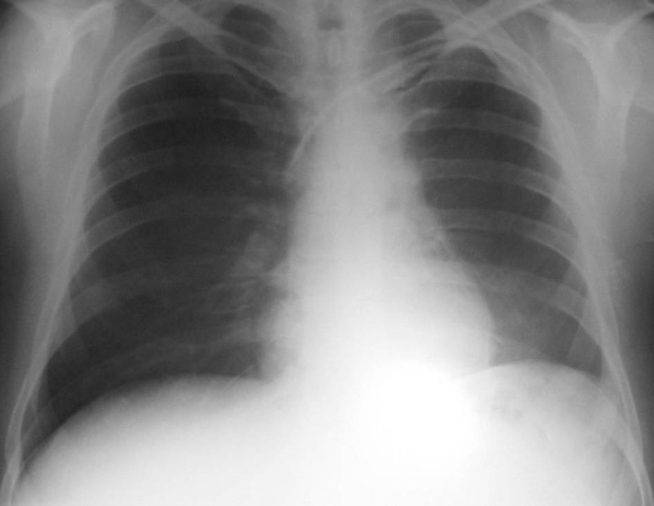 Plíce po léčbě – červenec 2004.