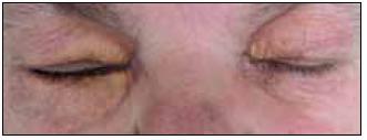 Periokulární xantogranulom. Na rozdíl od případu zobrazeného na obr. 1 zde tvoří xantomové buňky žlutavé granulomy, které však nezůstávající pouze na povrchu kůže, ale zasahují i do nitra orbity, jak ukazuje obr. 3, a mohou zhoršovat zrak.