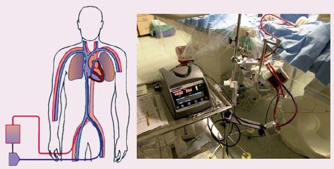 ECLS (extracorporeal life support), schéma zapojení (vlevo), krevní pumpa Levitronix s oxygenátorem (vpravo).