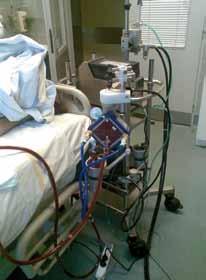 Perkutánní koronární intervence s podporou veno‑arteriálního ECMO (panel A), detail na zavedené kanyly do třísel (panel B, stejný pacient jako na panelu A) a celý systém u lůžka intenzivní péče (panel C). Systém PLS – permanent life support (Maquet, Germany).
