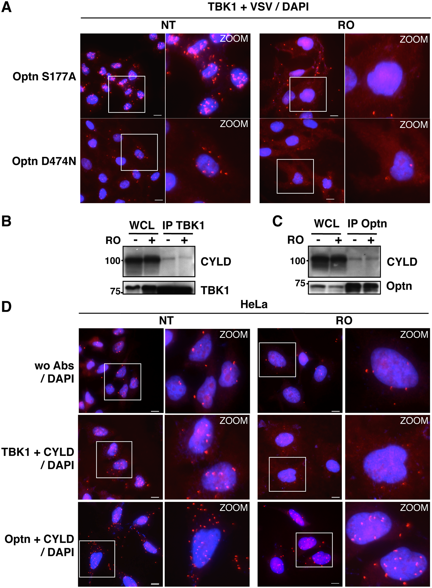 Characterization of the TBK1/CYLD- and Optn/CYLD-containing complex formation in G2/M synchronized cells.