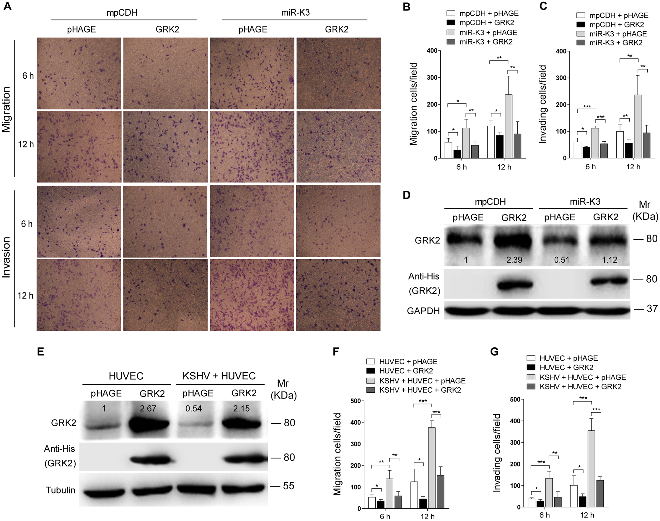 Ectopic expression of GRK2 inhibits miR-K3-induced endothelial cell migration and invasion.