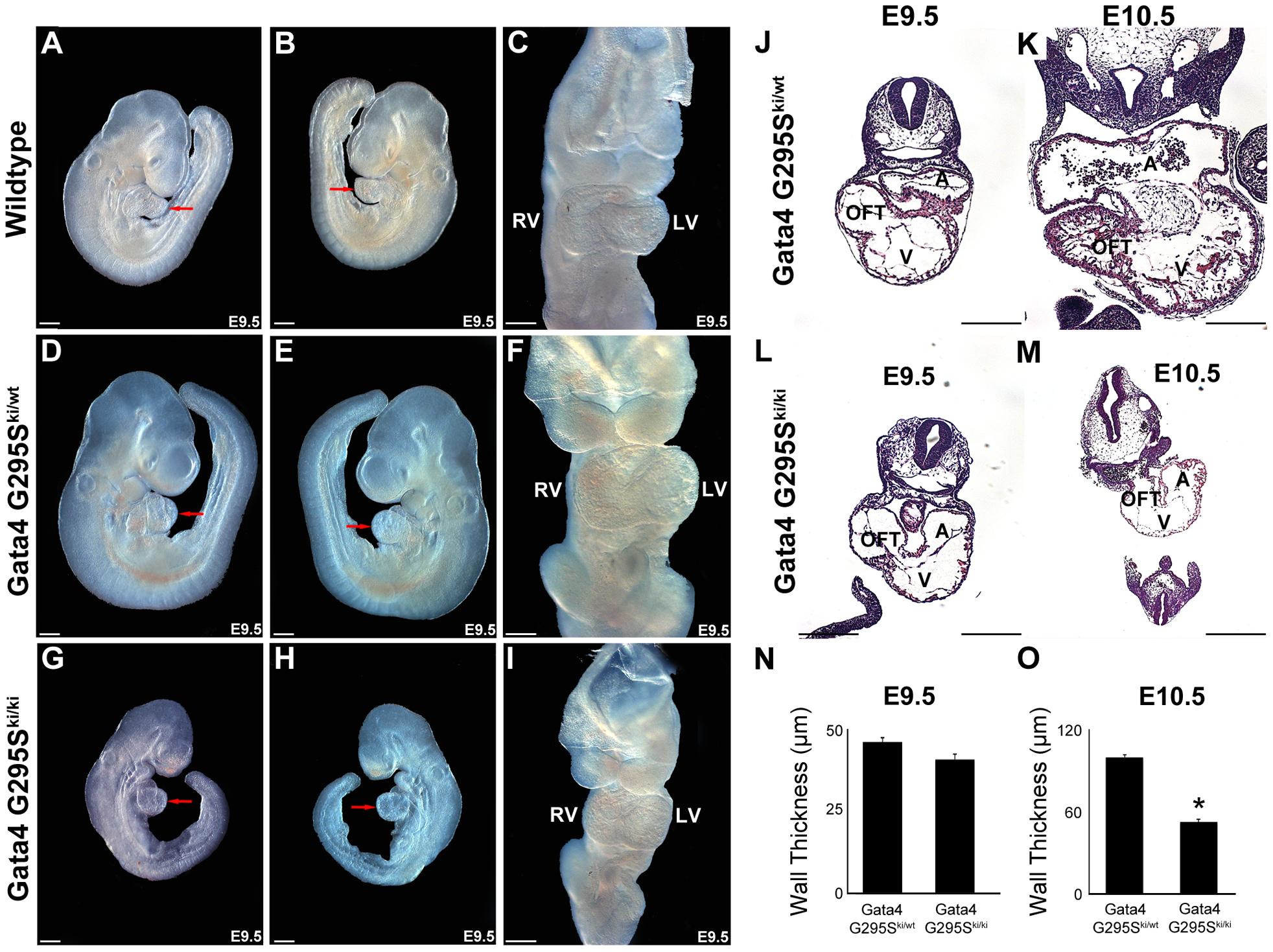 <i>Gata4 G295S<sup>ki/ki</sup></i> mice display growth retardation and a thin myocardium.