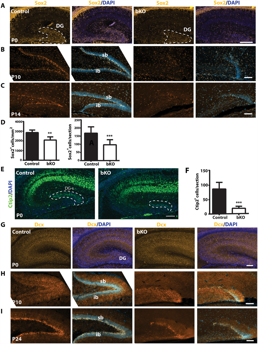 Brpf1 loss compromises neural stem cells and neuronal precursors.