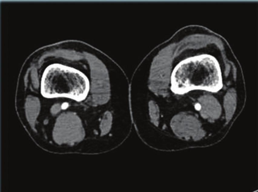 CT AG, patrné aneuryzma vena poplitea vlevo Fig. 1: CTAG; visible aneurysm of vena poplitea sinistra