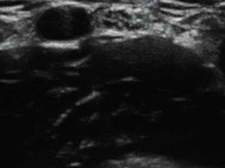 Příčný ultrazvukový obraz periferního nervu (n. medianus v kubitě) Nerv se z mediální strany přikládá k tepně (hypoechogenní oválný útvar). V nervu jsou patrny hypoechogenní (tmavé) oválné obrazy jednotlivých fasciklů. Ty jsou od sebe odděleny hyperechogenním (světlým) epineuriem.