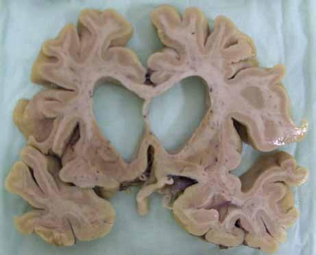 Celková atrofie mozku u pokročilé HN. (Zapůjčeno MUDr. R. Matějem, Ph.D., odd. patologie, Fakultní Thomayerova nemocnice s poliklinikou, Praha.)