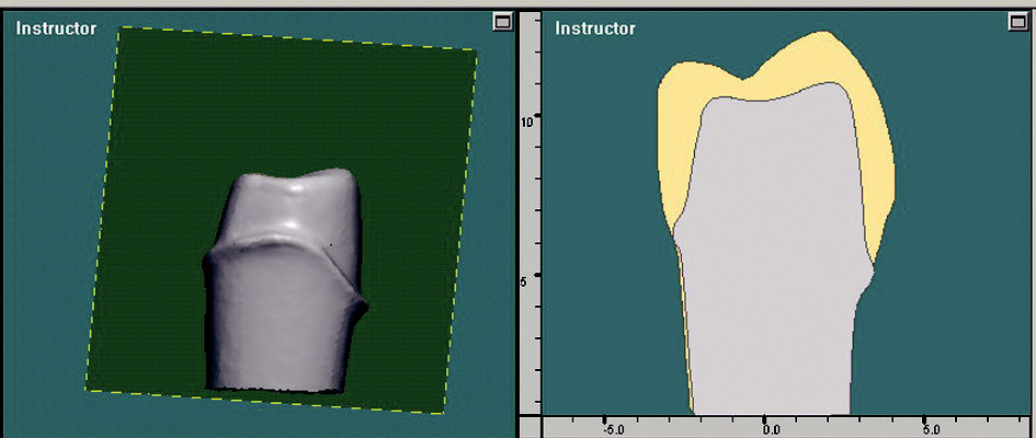 Promítnutí řezu ve 3D oddílu do oddílu 2D. Zde je patrné množství odbroušeného materiálu.