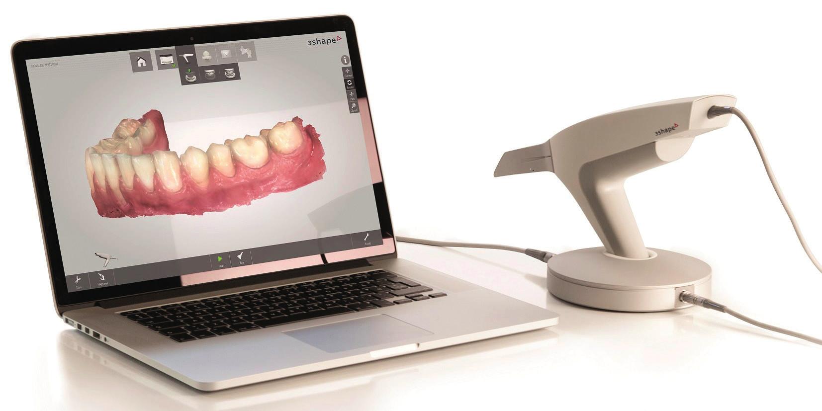 """Ordinační skener TRIOS<sup>®</sup> (3Shape, Dánsko) pro přímou metodu digitalizace (převzato z: <a href="""" http://heraeus-kulzer.com/int2/int/dentist/products_from_a_to_z/cara_16/cara_trios.aspx"""">http://heraeus-kulzer.com/int2/int/dentist/products_from_a_to_z/cara_16/cara_trios.aspx</a>)"""