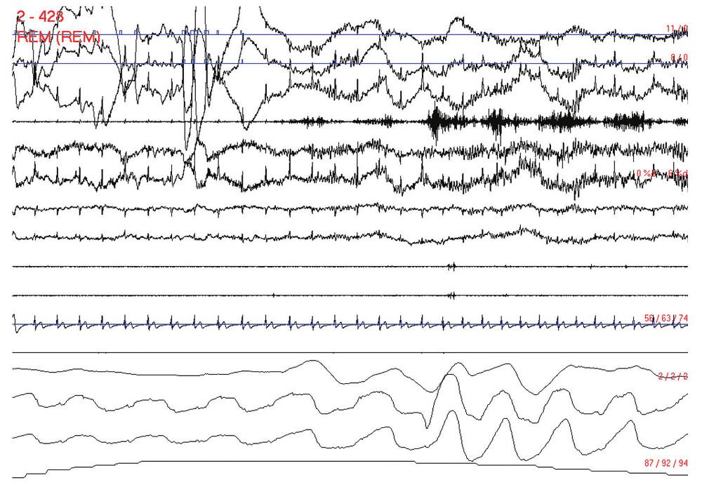 Probuzení na konci obstrukční apnoické pauzy. Polysomnografický záznam trvající 30 s. Svody: 1–3: oční pohyby, 4: povrchové EMG svalů brady, 5–8: EEG C2–C3, C1–C4, O1–A2 a O2–A1, 9 a 10: povrchové EMG svalů tibiales anteriores dextri et sinistri, 11: EKG, 12: proud vzduchu před nosem a ústy, 13 a 14: dýchací pohyby hrudníku a břicha, 15: saturace periferní krve kyslíkem v procentech.