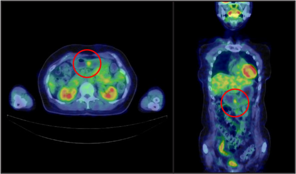 Positron emission tomography-computed tomography findings. A well-circumscribed mass was observed in the lower gastric body, with a maximum standardized uptake value of 2.7