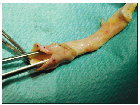 Dilatační plastika hrdla TAG s pomocí synarterializace odstupů společných pánevních tepen a nastřižením společného ústí Fig. 4. Dilating arterioplasty of the TAG using synarterialization of the common iliac arteries and partial incision of the common trunk