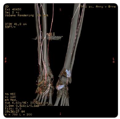 Viditeľná osteolýza pri CT angiologickom vyšetrení pravej nohy.