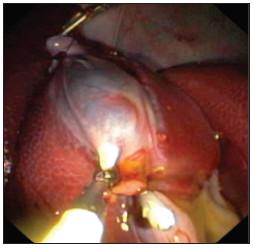 Zaklipování a. a d. cysticus pomocí běžných endoklipů Fig. 2. Clipping of cystic duct and artery using common endoclips