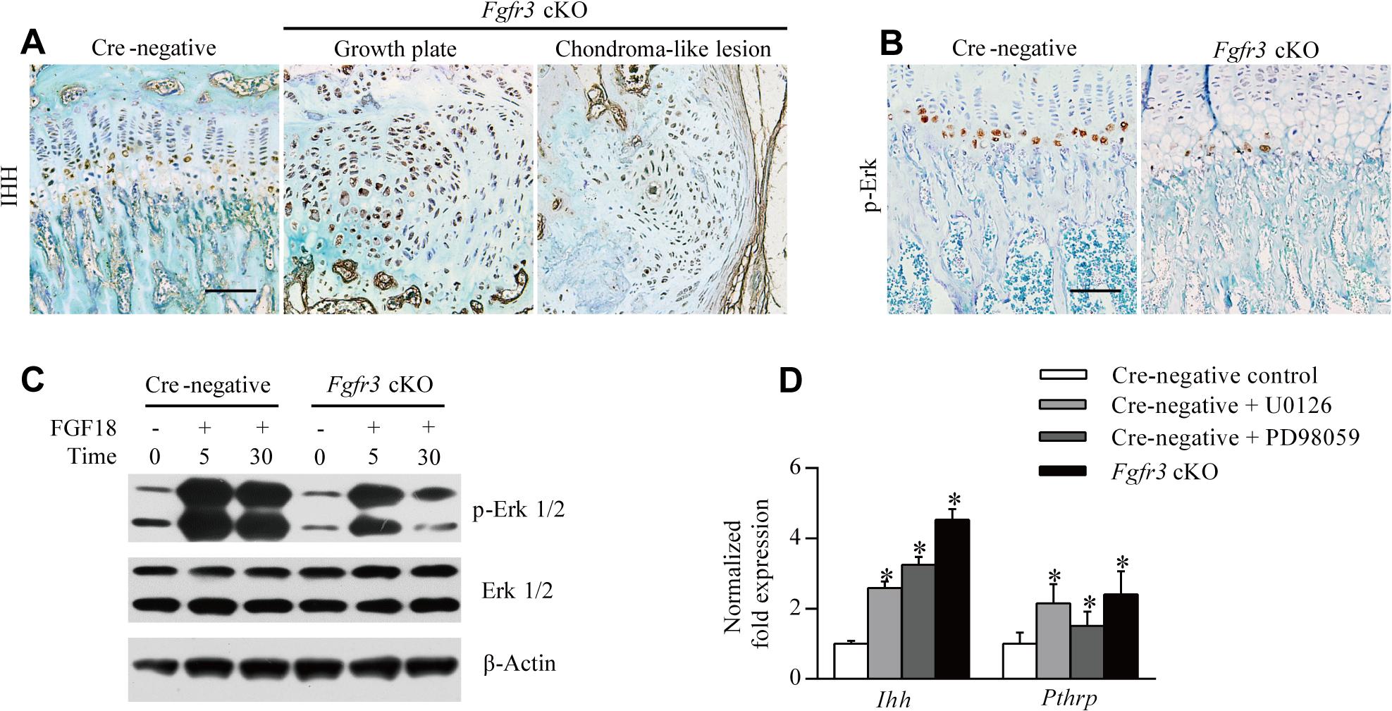 Loss of <i>Fgfr3</i> suppresses ERK activation but enhances IHH expression.
