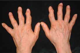 Erozivní osteoartróza rukou