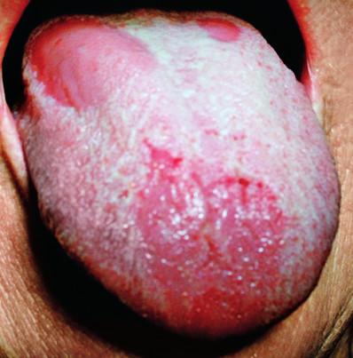Povlak jazyka patologicky zmnožený. Jeho olupovanie sa deje na väčších plochách na hrote a na tele jazyka. Stav imituje mapovitý jazyk.