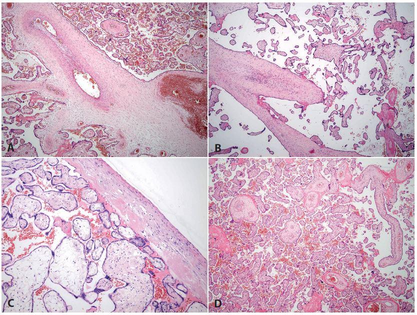 <b>Fetální trombotická vaskulopatie a změny při intrauterinním odúmrtí plodu</b>. A-C: Placenta z 39. týdne gravidity, akutní císařský řez pro hrozící hypoxii plodu. Matka 38 let, diabetes mellitus I. typu. <b>A</b>: trombózy cév různého stáří (HE, zvětš. 40x). <b>B, C</b>: avaskulární klky – různé stáří změn (HE, B zvětš. 100x, C zvětš. 200x). <b>D</b>: Placenta ze 32. týdne gravidity, mrtvý plod. Matka 32 let. Těžce macerovaný plod velikostně odpovídající asi o 2 týdny kratší graviditě. Cévy se také postupně uzavírají, je však všude stejné stáří změn (HE, zvětš. 40x).