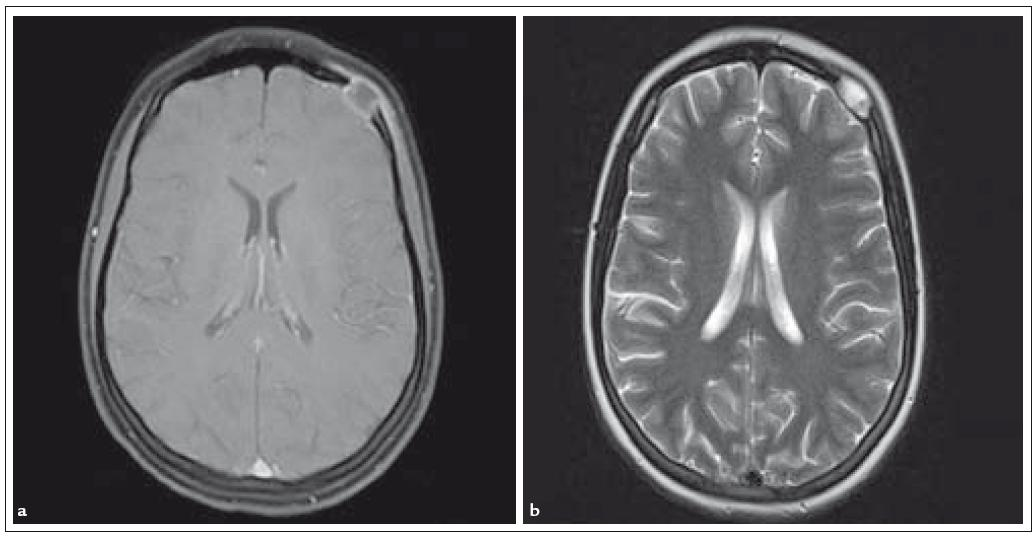 Fig. 3a, 3b. Osseous manifestation of LCH: nuclear magnetic resonance tomography of the head with an eosinophilic granuloma of the skull.