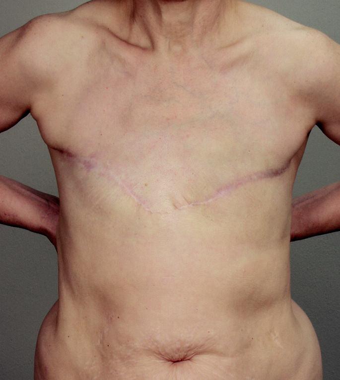 Obr. 5a. Pacientka ze skupiny D. po předchozí oboustranné mastektomii; stav před rekonstrukcí