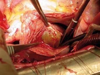 Peroperační nález objemného myxomu levé síně.