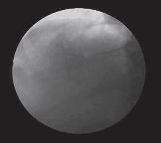 Pozice balónkového katétru v zaklínění při měření WHVP a zobrazení periferní větve portální žíly pomocí retrográdního nástřiku kontrastní látky.