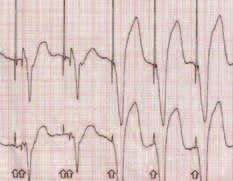Funkce AutoCapture™ firmy St. Jude Medical. Záznam povrchového EKG. U prvních dvou stahů je efektivní až záložní (back-up) pulz. U dalších 3 je komorová stimulace efektivní. (První dva stahy jsou splynulé – fusion beats).