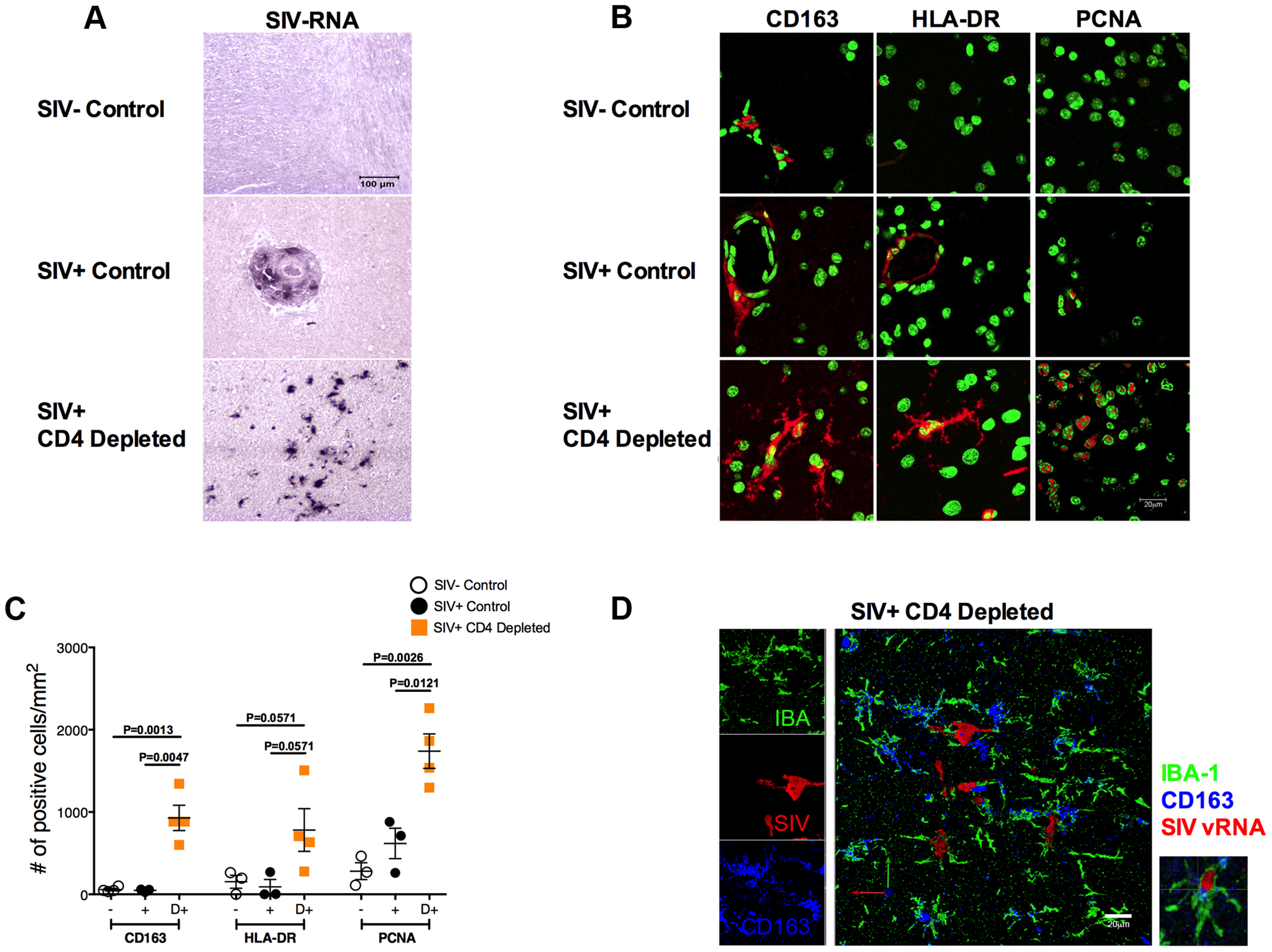 Massive activation and productive infection of microglia in CD4-depleted RMs.