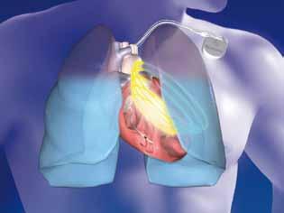 Schéma měření impedance plicní tkáně funkcí Optivol firmy Medtronic mezi vinutím defibrilační elektrody a pouzdrem ICD přístroje.