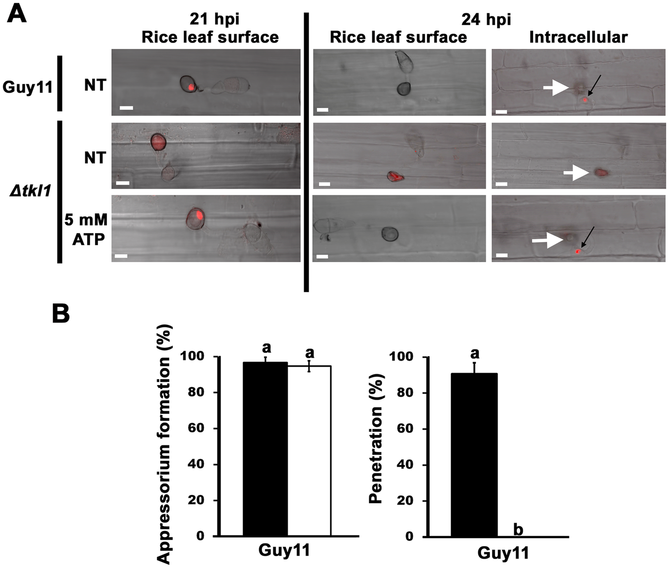 <i>TKL1</i> is required for the migration of appressorial nuclei into primary hyphae in host cells.