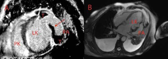 Parciálně trombotizované pseudoaneuryzma posterolaterální stěny levé komory – magnetická rezonance srdce