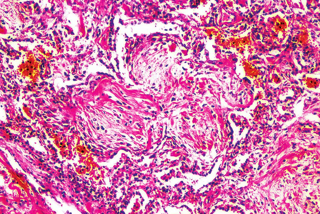 Obraz organizujúcej sa pneumónie (tvz. Massonove teliesko) (hematoxylín-eozín, zväčšenie 100x).