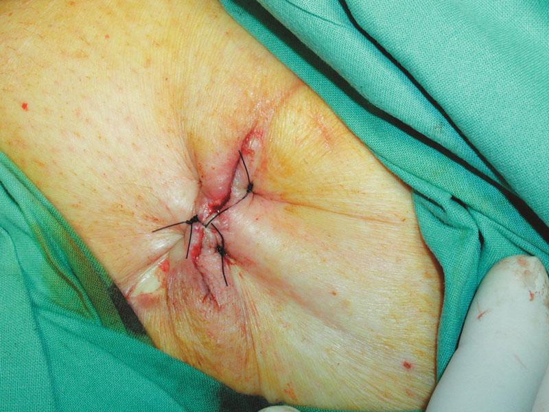 Sutura rány po odstranění V.A.C. Fig. 9. A wound suture after the V.A.C. system removal