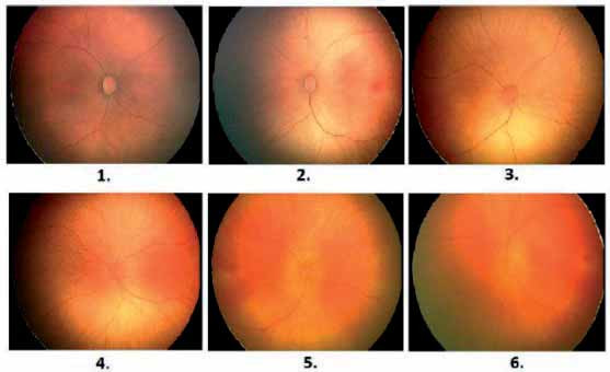 Fig. 13: The extract of retinal records, the images with optimal contrast (1–2), the images with average contrast (3–4) and the images with insufficient contrast (5–6).