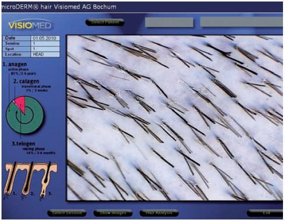 Druhý snímek pro digitální fototrichogram (FTG 2)