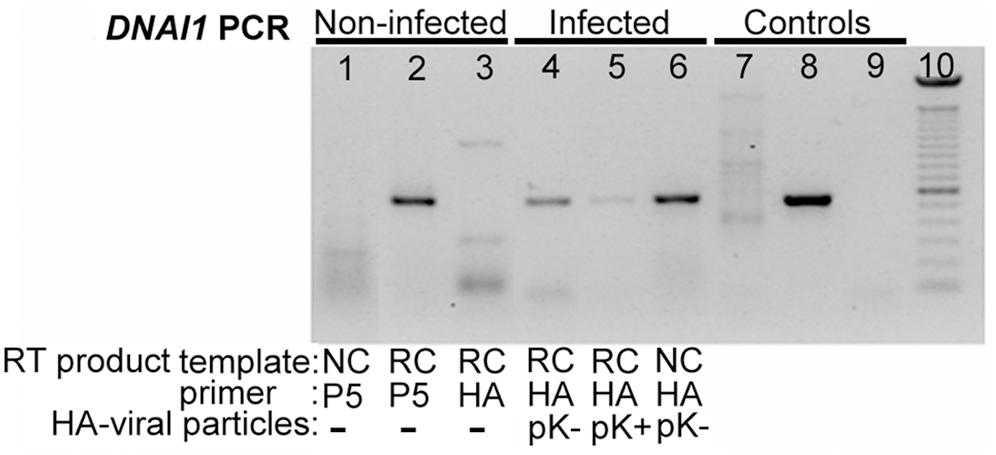 <i>HA</i>-tagged <i>DNAI1</i> gene transcription analysis by RT–PCR, in transduced normal HAECs.