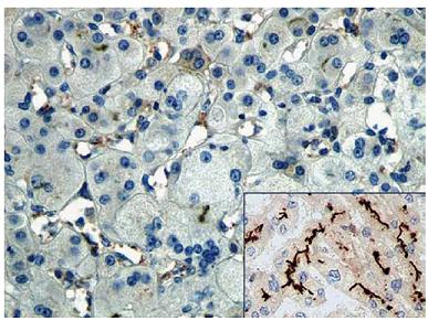 Imunohistochemické barvení na přítomnost proteinu BSEP demonstrující jeho absenci v explantátu jater (zvětšeno 200×). Inset – kanalikulární exprese proteinu ve zdravých játrech (zvětšeno 100x). Fig. 1. Immunohistochemical staining for the presence of BSEP protein demonstrating its absence in the liver explant (magnification 200×). Inset – canalicular expression of the protein in normal liver (magnification 100x).
