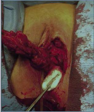 Radikální excize tumoru – mobilizace preparátu