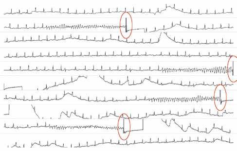 Záznam z telemetrie u pacienta po akutním infarktu myokardu, u kterého docházelo k opakovaným recidivám fokálně spouštěných komorových tachykardií navzdory podávání antiarytmik, hluboké sedaci a umělé plicní ventilaci