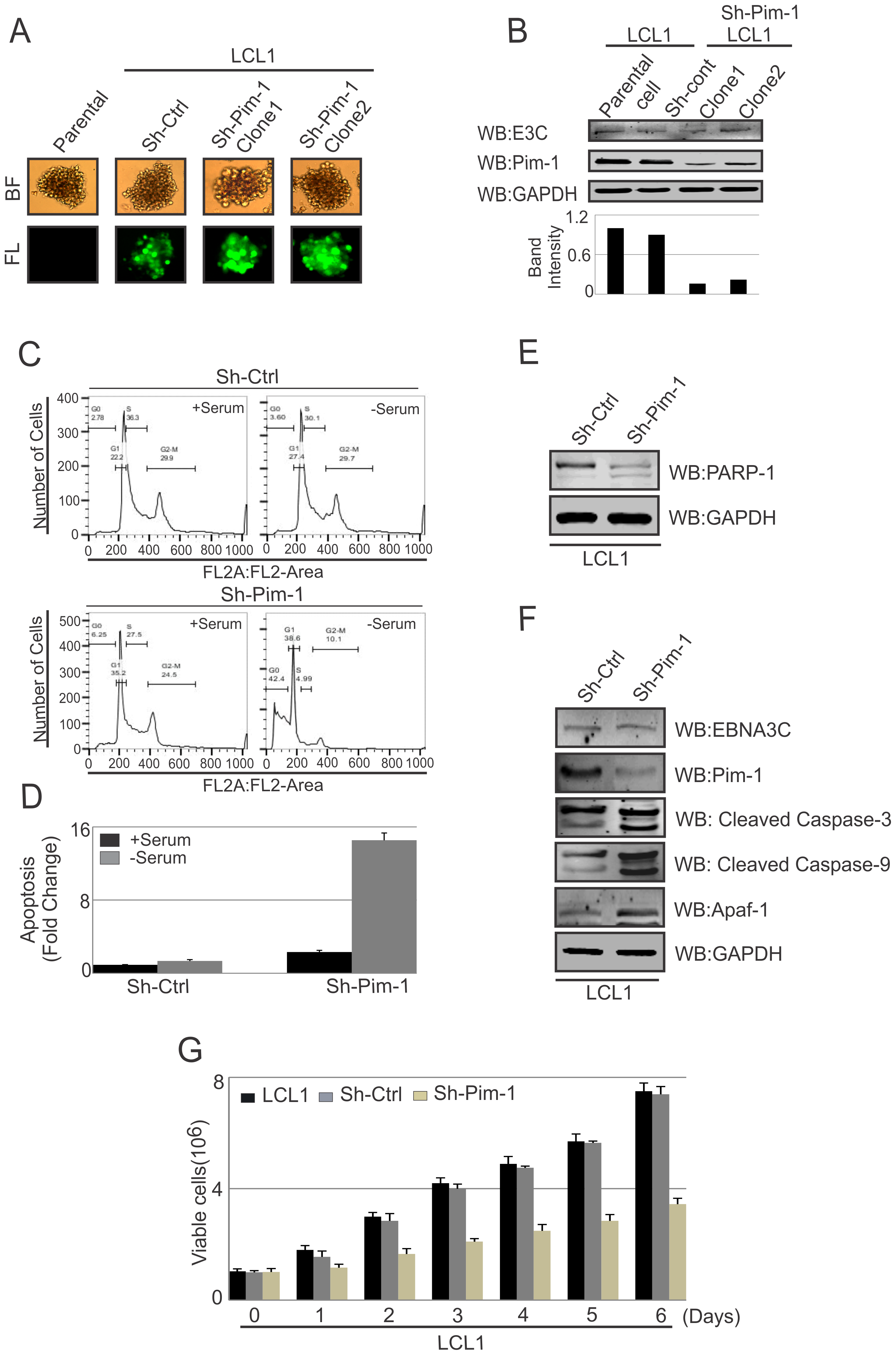 Pim-1 silencing by sh-RNA sensitizes EBV transformed lymphoblastoid cells by induction of the intrinsic apoptosis signaling pathway.