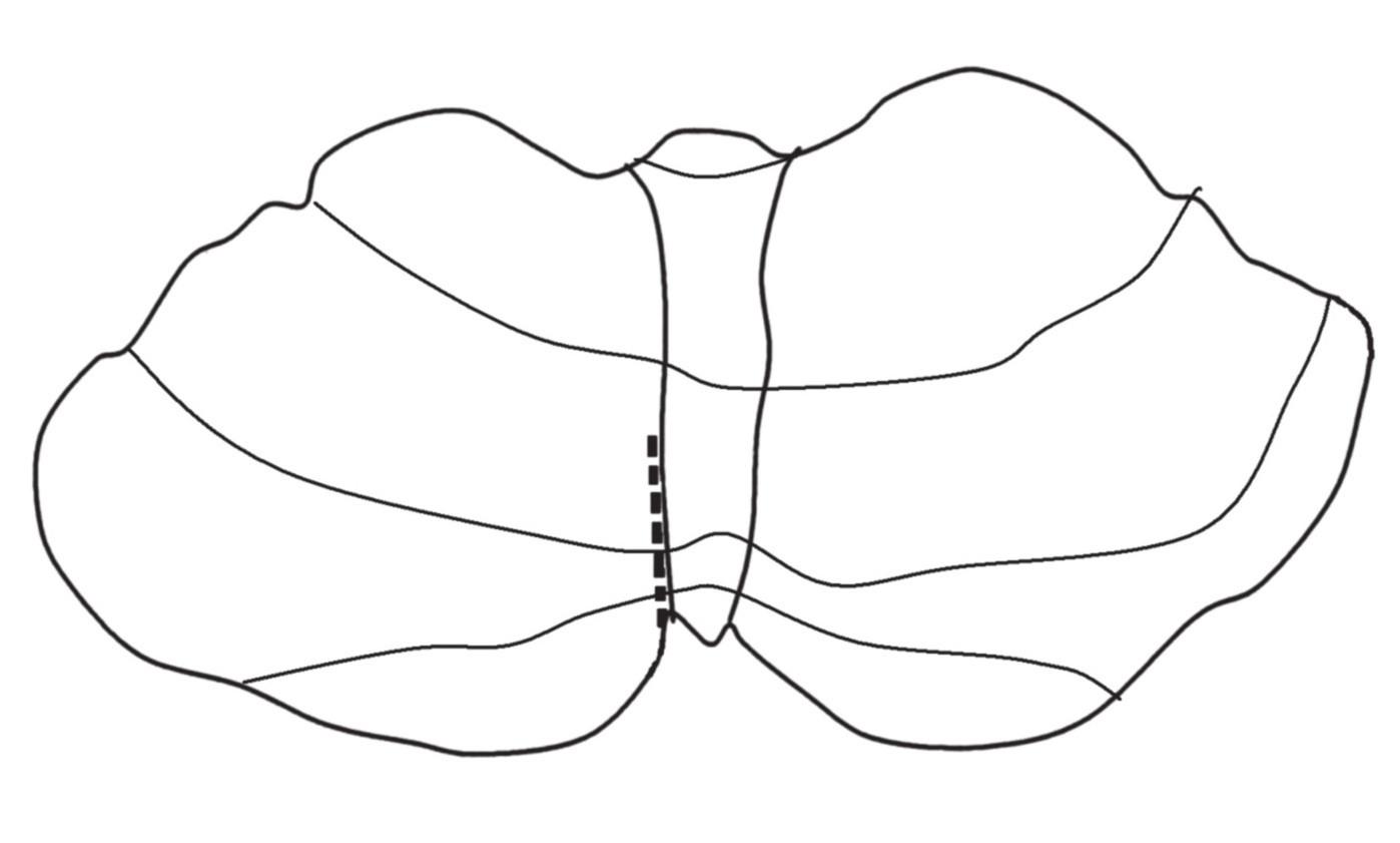 Zjednodušené schéma telovelárního přístupu cerebelomedulární fisurou. Nedochází k rozetnutí vermis a eliminuje se riziko vzniku cerebelárního mutizmu.