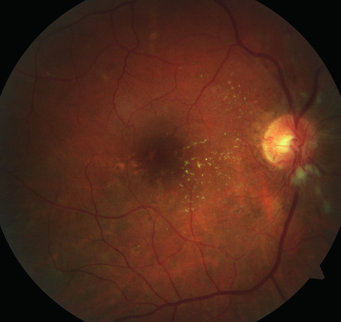 Pravé oko. Výrazná hypertonická retinopatie, stadium 3 dle Keitha. Dominuje zvýraznění kapilární sítě na papile.