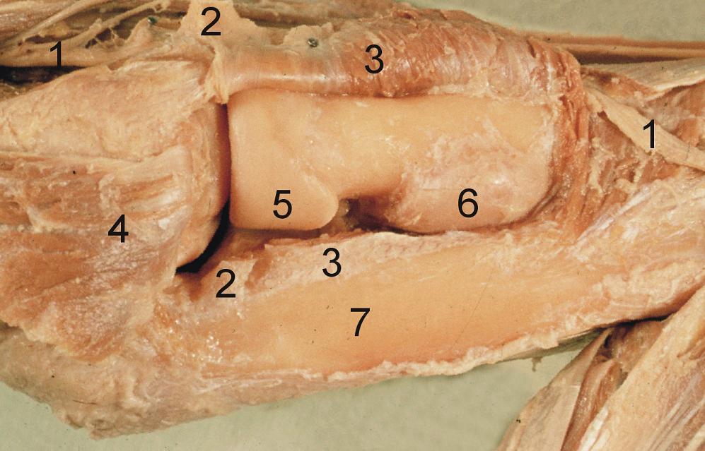 Obr. 23: Boydův přístup na anatomickém preparátu. Je dobře patrné, jak omezená je revize kloubní dutiny při zachování lig. collaterale lat. (srovnej s Obr. 11): 1 – r. profundus n. radialis,  2 – protnuté lig. anulare radii, 3 – m. supinator, 4 – pro lepší přehled proximálně odklopený m. anconeus (tento krok není součástí Boydova přístupu), 5 – hlavice radia s circumferentia articularis capitis radii (všimni si různé šířky této kloubní plochy), 6 – šlacha m. biceps brachii navinutá na pronovaný radius. <i>(Převzato z Bartoníček J. Operační přístupy u zlomenin hlavičky a diafýzy rádia. Acta Chir Orthop Traumatol Cech 1988;55:497−516.)</i> Fig. 23: Boyd approach on anatomical specimen. It shows clearly the limited option of revision of the joint cavity due to preservation of lateral collateral ligament (compare with Fig. 11): 1 – deep branch of the radial nerve, 2 – split radial annular ligament, 3 – supinator, 4 – the proximally retracted anconeus allows better visualization (this step is not part of the Boyd approach), 5 – radial head with articular circumference of radial head (note the different width of this articular surface), 6 – biceps brachii tendon rolled around the pronated radius. <i>(Reprinted from Bartoníček J. Operační přístupy u zlomenin hlavičky a diafýzy rádia [Surgical approaches in fractures of the head and shaft of radius]. Acta Chir Orthop Traumatol Cech 1988;55:497−516.)</i>