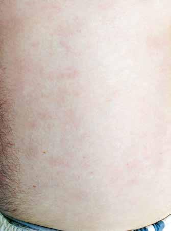 Kožní léze na trupu, stav po zahájení předfáze kortikosteroidy